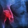 Karakteristike farmakološkog tretmana osteoporoze