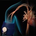 Medicinska nutritivna terapija kod obolelih od hipertenzije