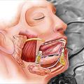 Tumori pljuvačnih žlezda - Dijagnostika, lečenje, prognoza