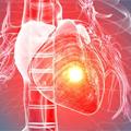 Redukcija lipidskog rizika u prevenciji kardiovaskularne bolesti
