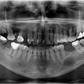 Ciste vilica u stomatološkoj praksi