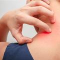 Nega i lečenje dece sa inflamatornim dermatozama