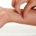 Savremeni pristup u dijagnostici i lečenju najčešćih inflamatornih dermatoza
