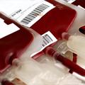 Osnovni principi primene transfuzione terapije kod hirurških pacijenata