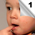 Urgentni metabolički poremećaji u dečjem uzrastu - Dijagnostika, terapija, nega (1)