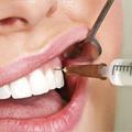 Lokalna anestezija u stomatološkoj praksi