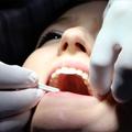 Dentogene infekcije u stomatološkoj praksi