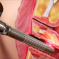 Vulvovaginitis - Etiologija, klinička slika, dijagnostika i terapija