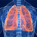 Inicijalni tretman edema pluća