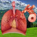 Inicijalna dijagnostika i lečenje akutnog pogoršanja bronhijalne astme - Savremeni koncept