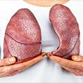Inicijalna dijagnostika i tretman plućne embolije