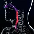 Inicijalni tretman opstrukcije disajnog puta
