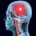 Inicijalni tretman akutnog moždanog udara