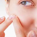 Sistemska terapija i adekvatna nega kože kod teških formi akni