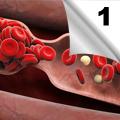 Primena antiagregacione terapije - Savremeni principi (1)