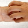 Najčešća zapaljenjska oboljenja kože kod dece i odraslih