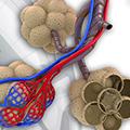 Plućna embolija - Dijagnostika, inicijalni tretman i prognoza