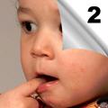 Urgentni metabolički poremećaji u dečjem uzrastu - Dijagnostika, terapija, nega (2)