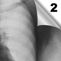 Radiološka dijagnostika poremećaja u plućnom vaskularnom sistemu (2)