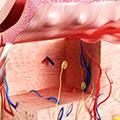 Savremeni pristup u lečenju inflamatornih dermatoza