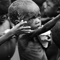 Nedostupnost hrane, glad i pothranjenost