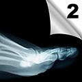 Dijagnostika i lečenje povreda mekih tkiva skočnog zgloba