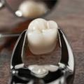 Vađenje zuba - Principi i tehnike