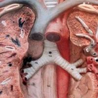Dijagnostika i lečenje infekcija donjeg respiratornog trakta