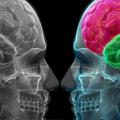 Vaskularne malformacije mozga