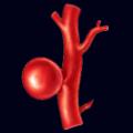 Intrakranijalne aneurizme