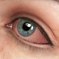 Racionalna primena antibiotika u lečenju infekcija oka