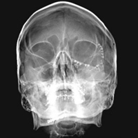 Savremeni pristup dijagnostici i lečenju povreda maksilofacijalne regije