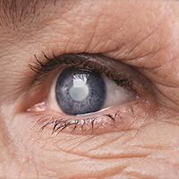 Savremeni aspekti dijagnostike, praćenja i lečenja glaukomne bolesti